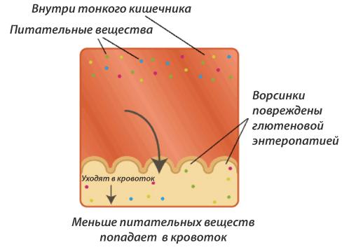 kishechnik-2