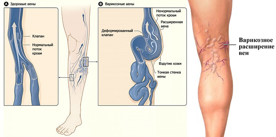 Снять обострение тромбофлебит