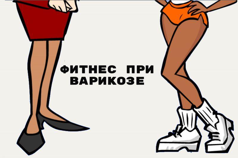 uprazhneniya-pri-varikoze-mozhno-li-pri-varikoze-zanimatsya-fitnesom